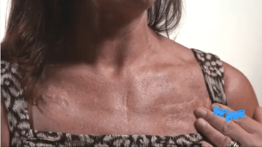 embracing heart surgery scars