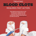 treating-blood-clots