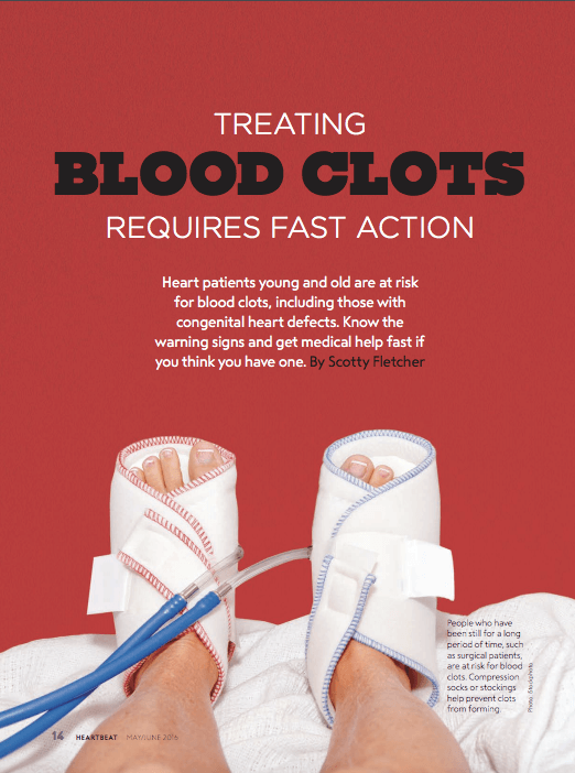 Treating Blood Clots Requires Fast Action Mended Hearts